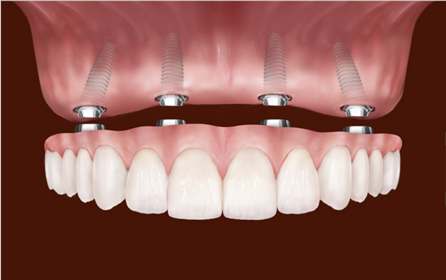 Dental Implants In Rockville MD