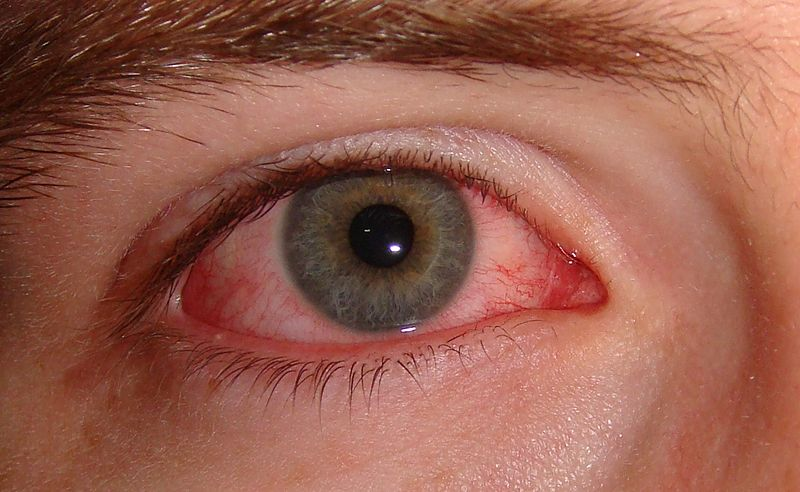 How to treat Blepharitis