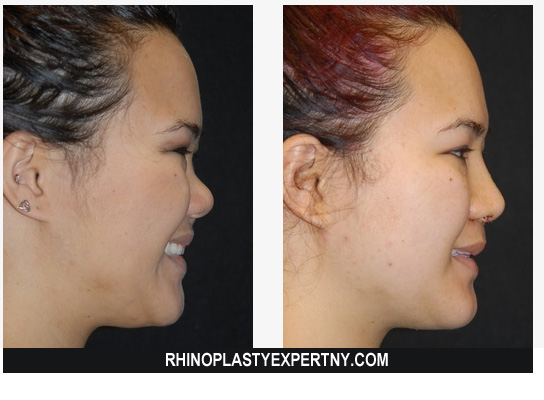 Best Rhinoplasty NYC