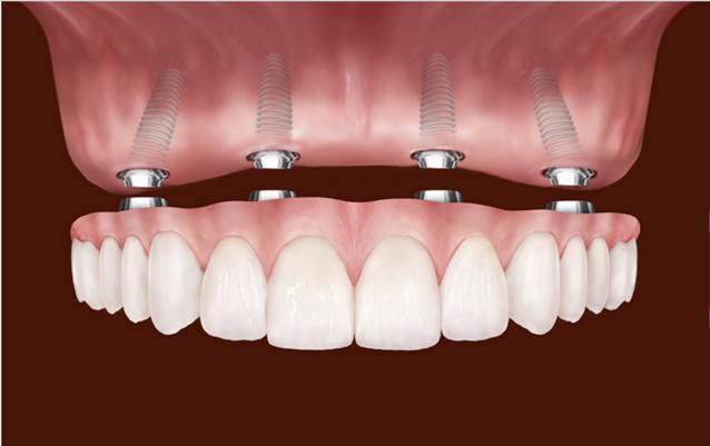 Dental Implants In Rockville MD